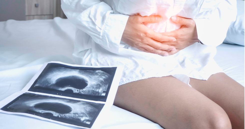Efectos colaterales de la endometriosis