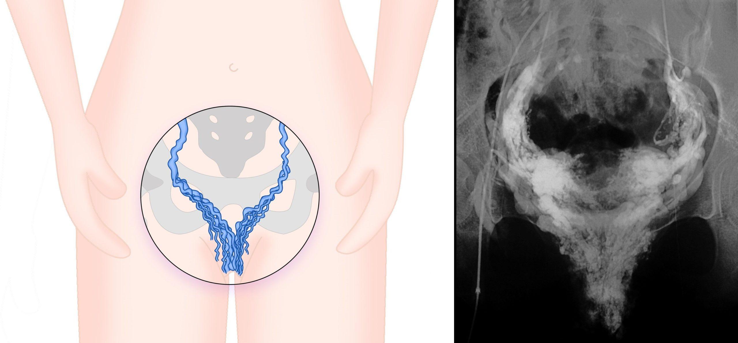 Expertos avisan de que las varices genitales alteran en gran medida la calidad de vida de las pacientes